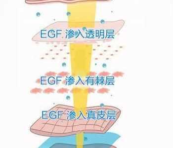 EGF、AFGF、BFGF于护肤品中的作用区分 afgf和egf的区别